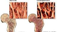 كيف تشرح لمريض صيدليتك النظام الغذائي لهشاشة العظام؟