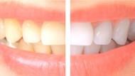 ستة عشر نوعا من الاطعمة لتقوية الاسنان وتبييضها