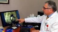 تركيا – تحذير خطير من انتشار واسع للجرب.. الأعراض والعلاج!