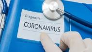 ماذا نفعل في حال إعلان فيروس كورونا الجديد (كوفيد-19) وباءاً عالمياً ؟
