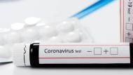 إعطاء الضوء الأخضر لأول اختبار منزلي لفيروس كورونا الجديد