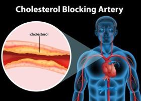 تقنية «كريسبر» أحدث علاج لتخفيض الكوليسترول الضار